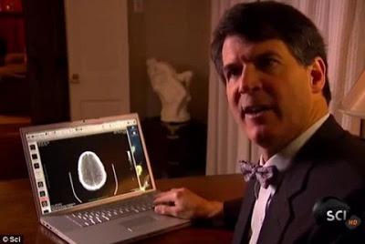 Alexander Eben il neochirurgo uscito dal coma
