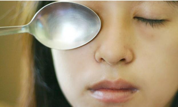 Occhiaie, ecco alcune strategie naturali